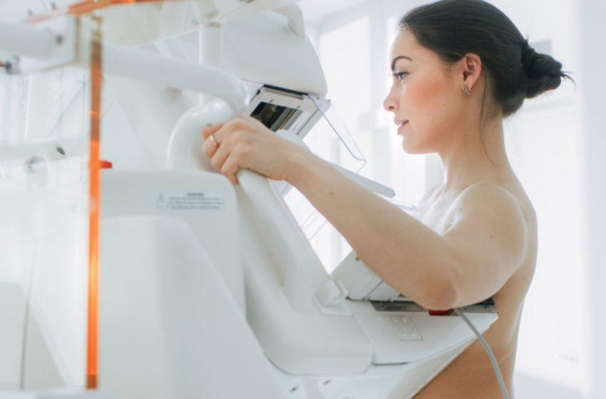 Afinal, a mamografia deve ser realizada aos 40 ou 50 anos?